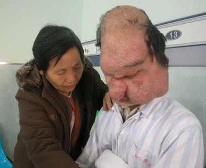 Chinese Lion-face Man